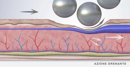 sistema Endospheres therapy