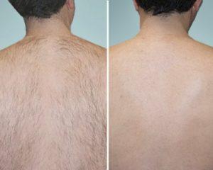 Epilazione Laser - prima e dopo uomo